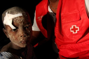 Injured Child in Port-au-Prince (Photo:American Red Cross)
